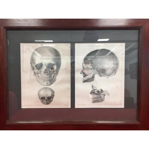 Vintage anatomy poster French Lithograph Framed Skull